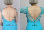 Big Impact Alterations include changing the back neckline by adding criss-cross straps
